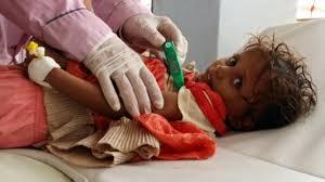عدد المصابين بالكوليرا في اليمن يتجاوز المليون مصابا