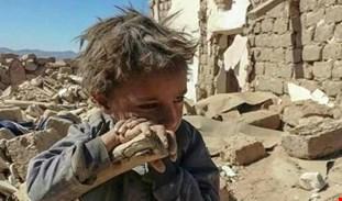 المجاعة في اليمن تعتبر أداة للحرب