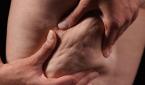 الأغذية التي تسبب السليوليت والأغذية التي تساعد على القضاء عليه